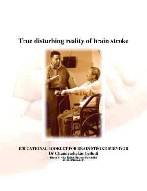 brain stroke awareness article english