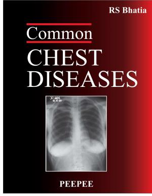 Common Chest Diseases - Read on ipad, iphone, smart phone and tablets.
